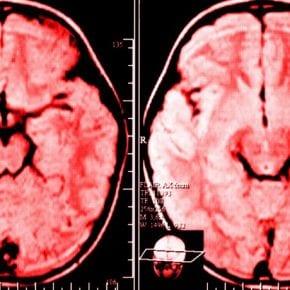 Ученые доказывают, что ежедневные жалобы способны изменить структуру мозга человека